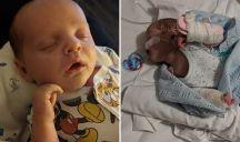 Herpes Simplex neonati: cos'è il bacio della morte