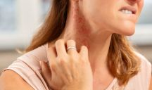 Allergia al nichel testimonianze: la malattia di Anna Tatangelo