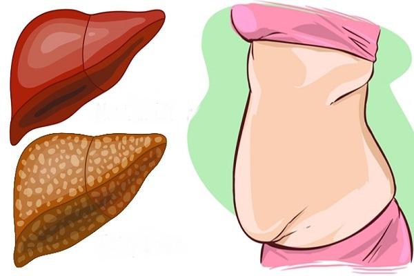 fegato pieno di tossine sintomi