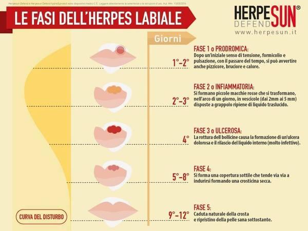 herpes labiale sintomi e cura dell'infezione