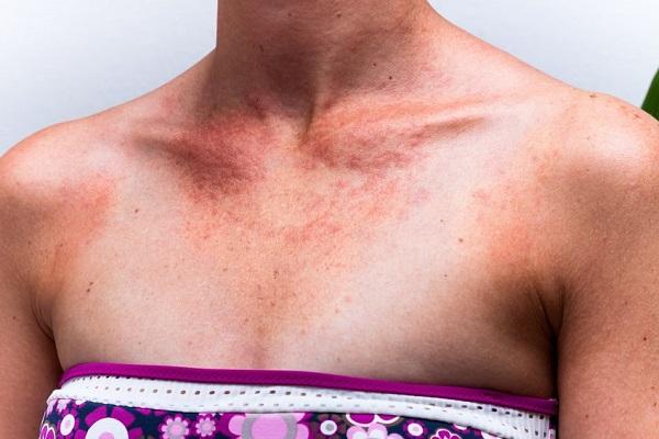 Allergia al sole o fotoallergia: la malattia di Milly Carlucci