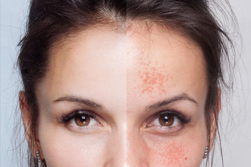 depurare la pelle